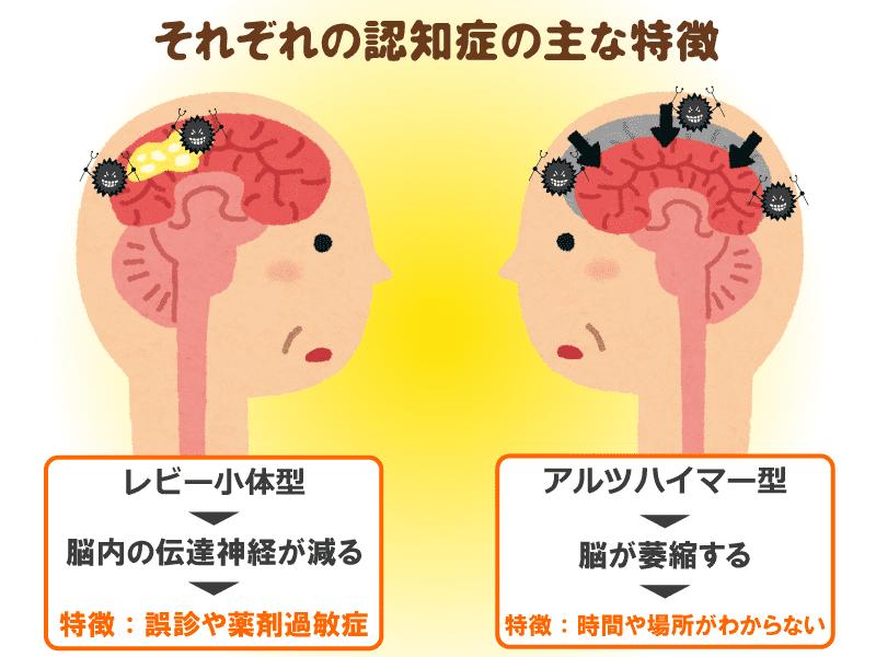 アルツハイマー 型 認知 症 看護
