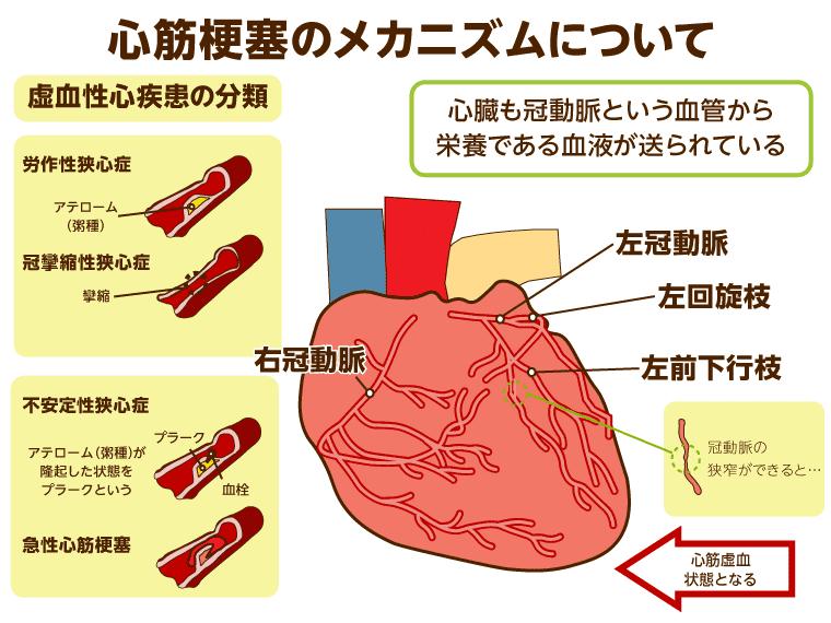 血性 心 疾患 虚 虚血性心疾患について
