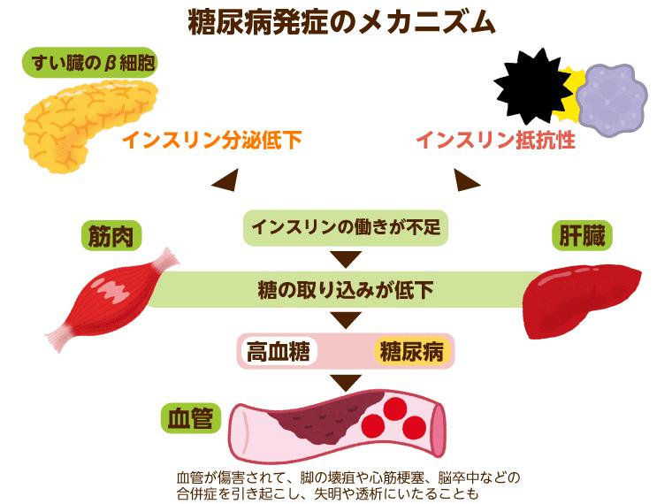 食べ物 する を 膵臓 強く 第9回 膵臓に優しい生活について